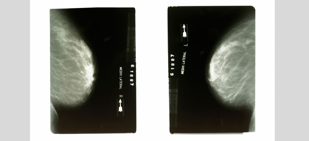 What Does Google's Breast Cancer Screening A.I. Actually Do?<